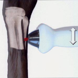 Fracture suros métacarpien accessoire traitement